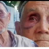 Durağan' da 86 Yaşındaki Babasını Satırla Döven , Zanlı Ceza Evine Paketlendi…